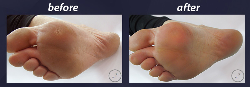 sensimatch-before-after-1