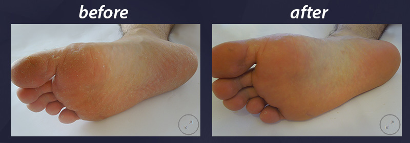 sensimatch-before-after-2