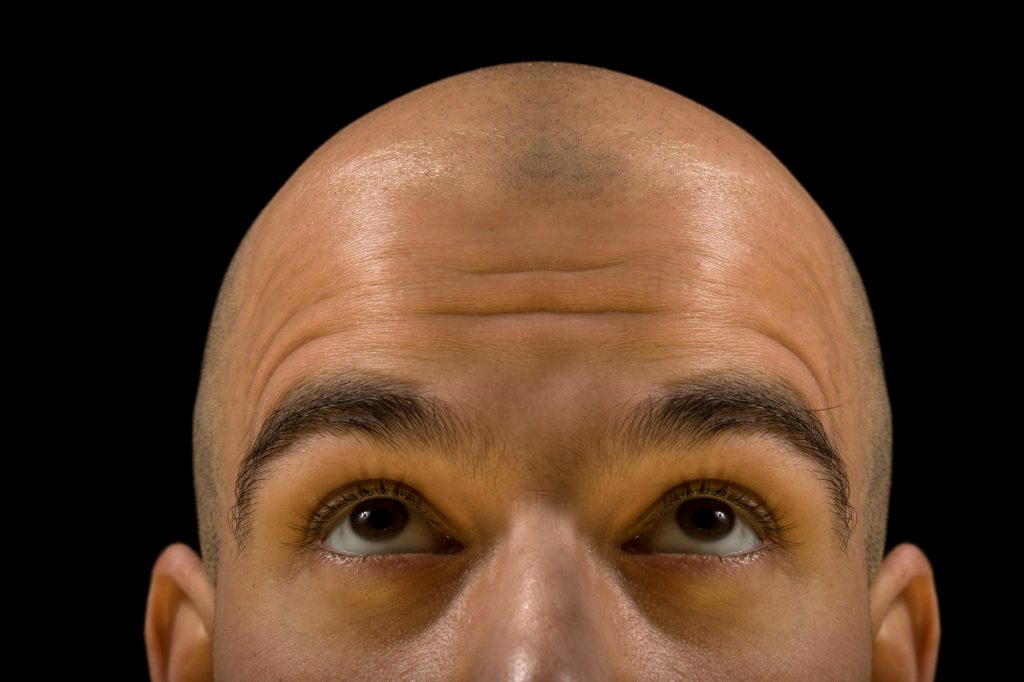 What Causes Men to Go Bald?